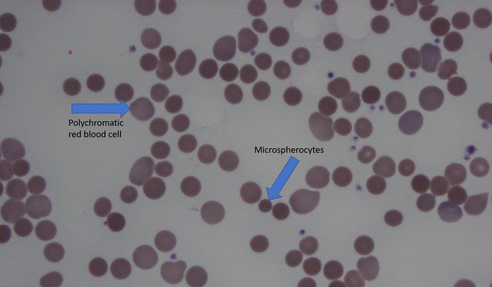 Cureus A Unique Triad Ulcerative Colitis Primary