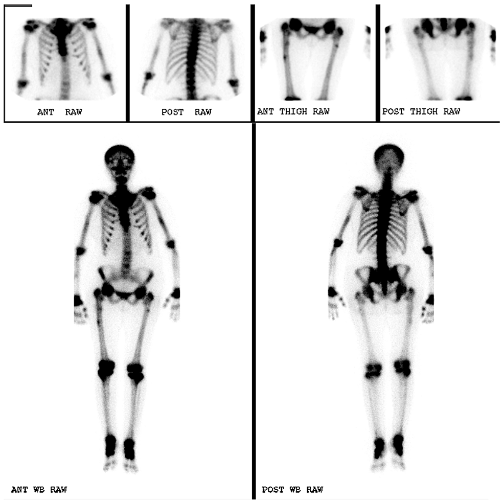 Whole-Body-Bone-Scintigraphy.