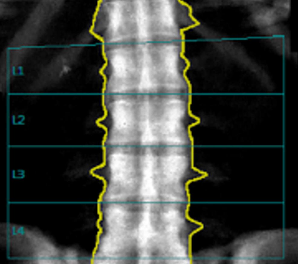 Follow-up-Lumbar-Spine-BMD-in-2019.