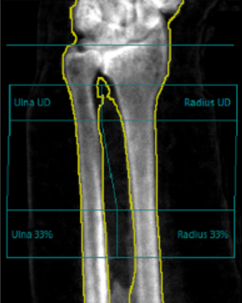 BMD-of-the-Distal-Third-of-the-Left-Radius.