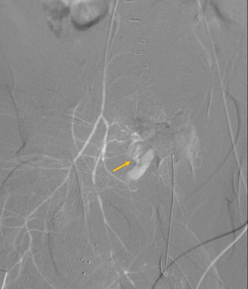Right-iliac-angiogram