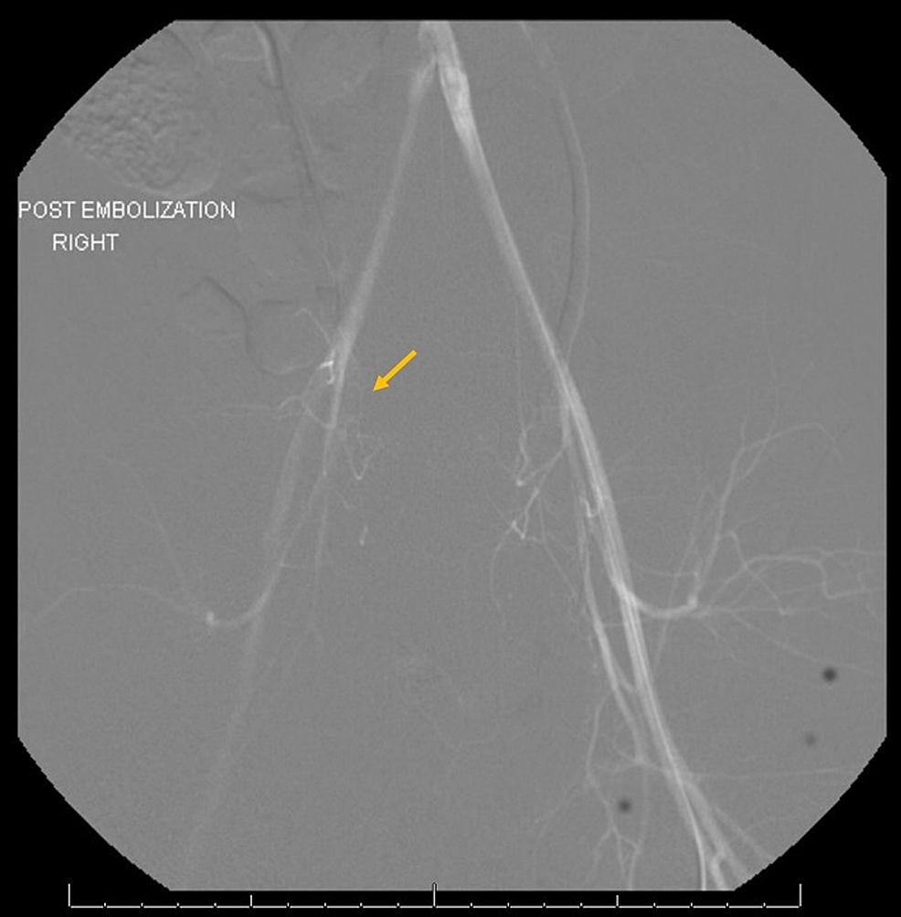 Post-embolization-image
