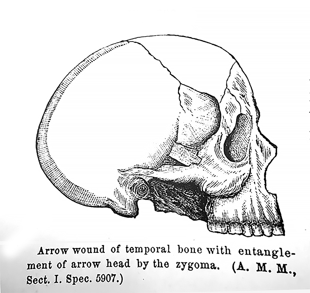 Arrowhead-lodged-in-the-zygomatic-arch.