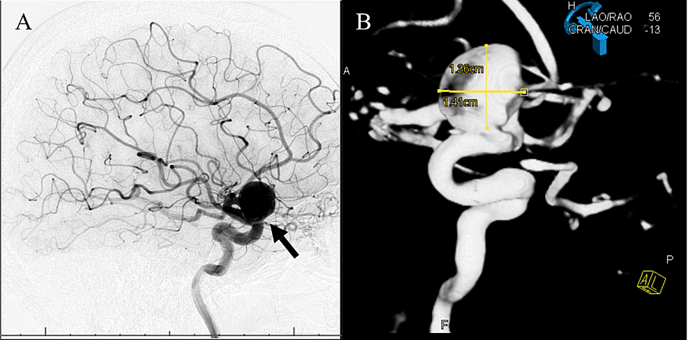 DSA-of-right-internal-carotid-artery/right-ophthalmic-artery-origin-aneurysm-pre-pipeline-embolization-device-placement