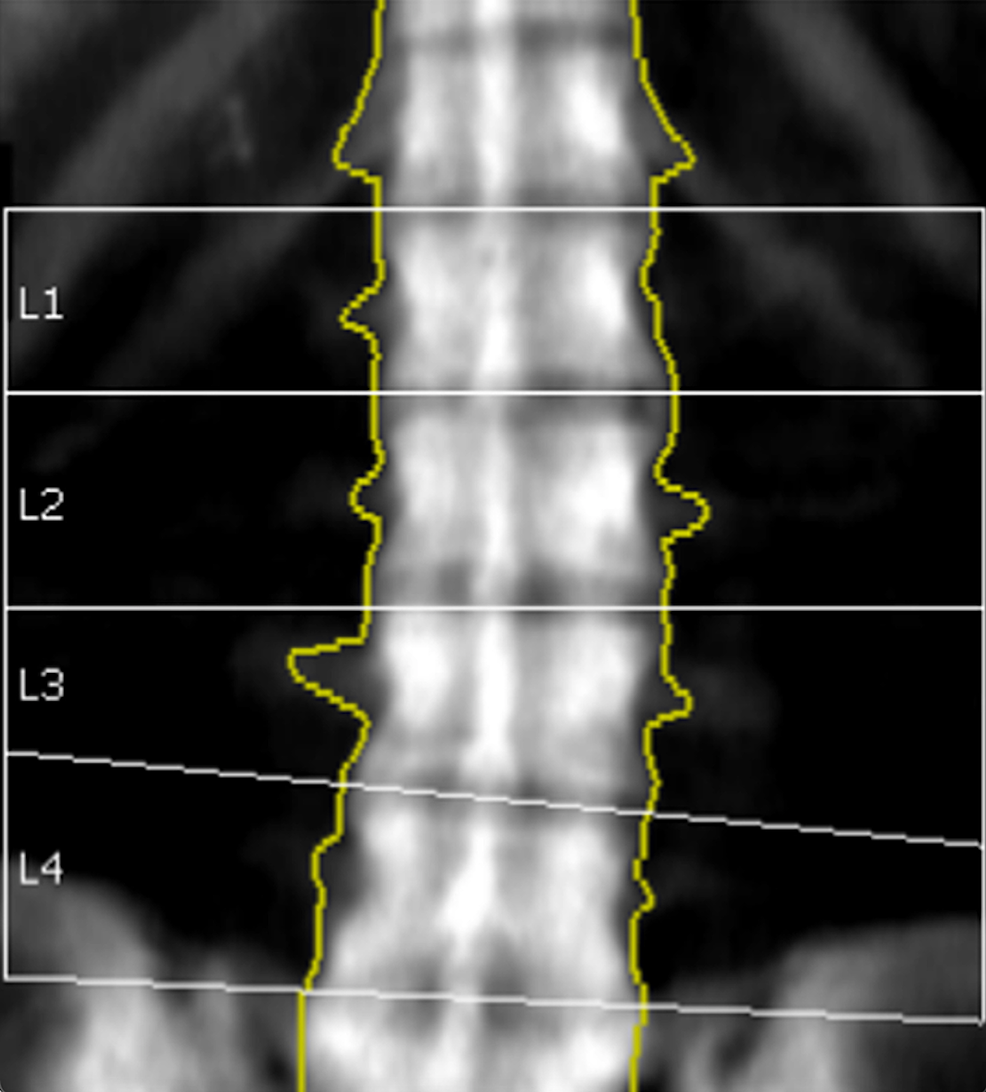 Initial-BMD-of-Lumbar-Spine-(2010).