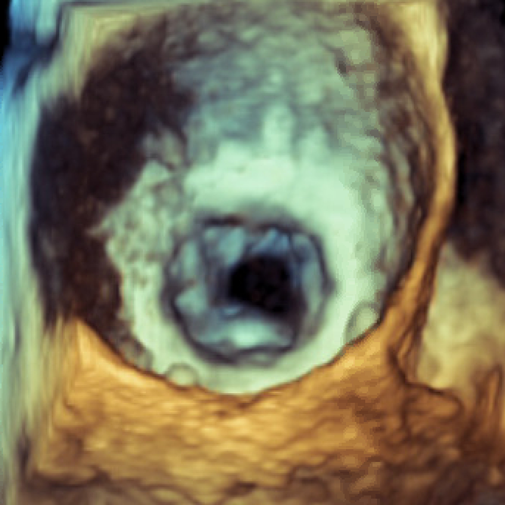 Three-dimensional-transesophageal-echocardiogram-of-surgeon's-view-during-diastole