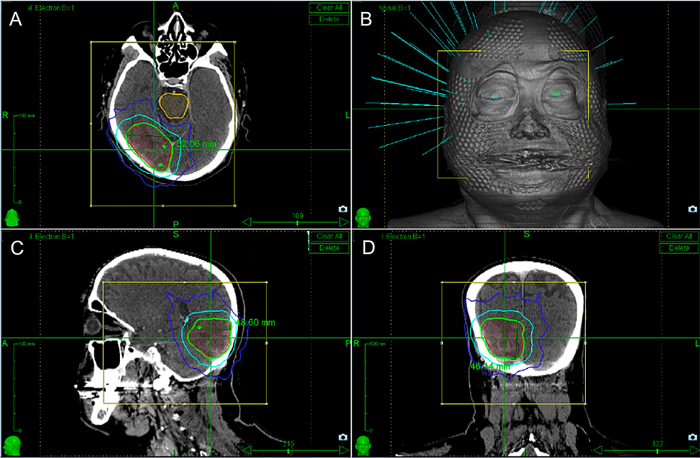 Stereotactic-radiotherapy-plan-targeting-the-right-occipital-lymphoma