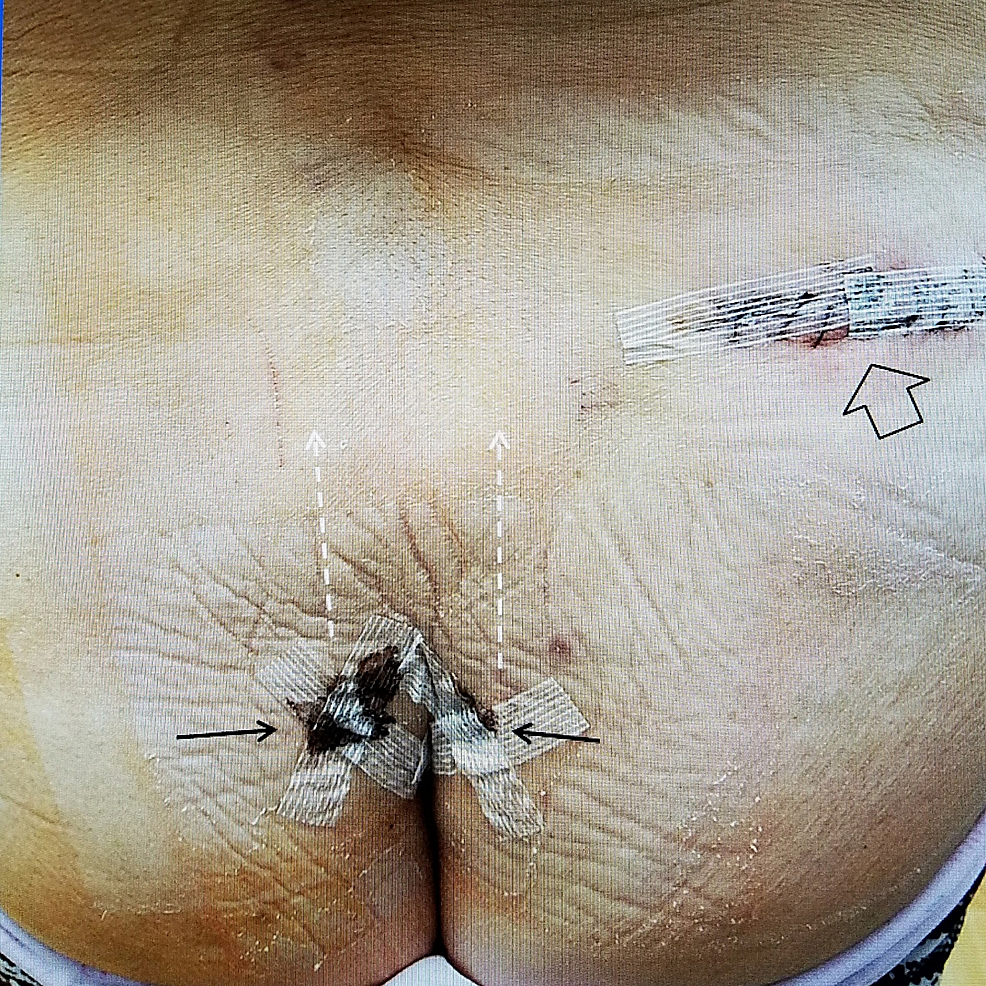 Picture-of-incisions-for-stimulator-wires-and-permanent-battery.