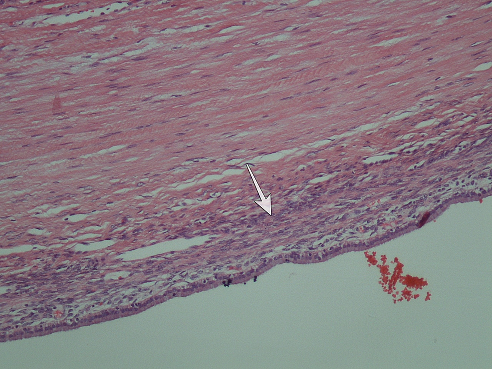The-hematoxylin-eosin-(x-100)-stained-histologic-section.-The-ovarian-like-stroma-is-noted-(white-arrow).