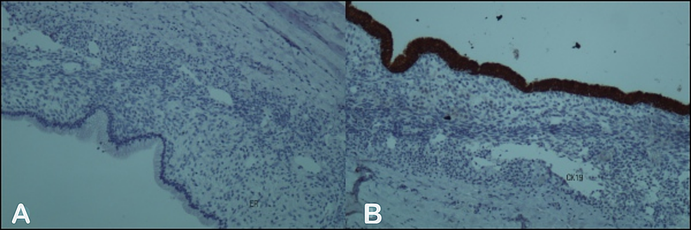 The-immunohistochemistry,-A:-to-estrogen-receptor-(ER)-and-B:-to-cytokeratin-19-(CK19).