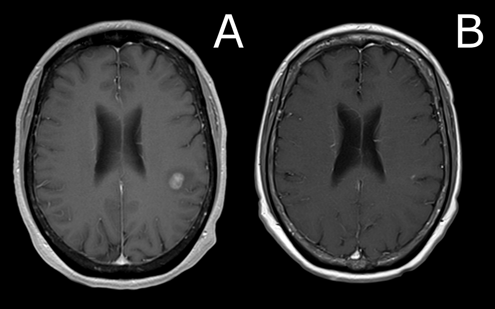 Comparison-of-brain-MRI-at-presentation-versus-three-months-after-SRS-procedure