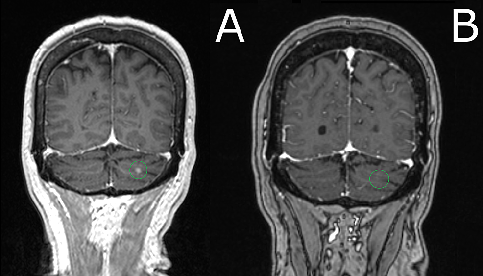 Comparison-of-brain-MRI-at-presentation-(a)-versus-3-months-after-SRS-procedure-(b)