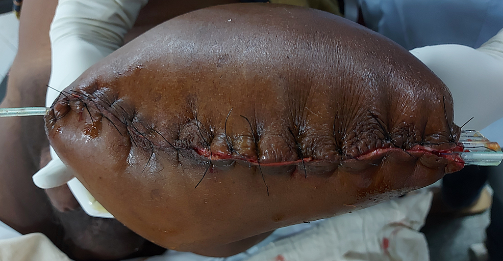 Intraoperative-closed-wound-of-left-above-knee-amputation