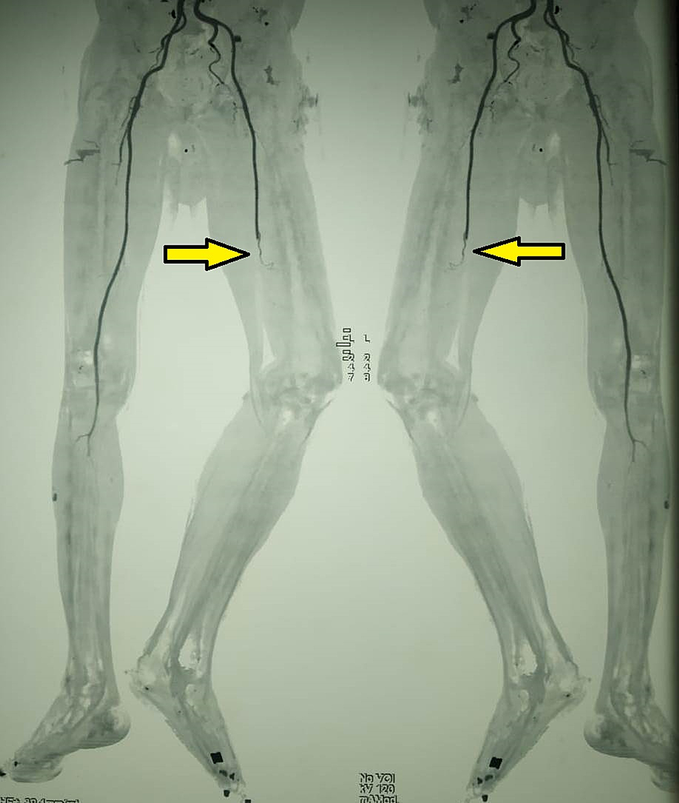 CT-subtraction-angiogram-showing-complete-occlusion-of-the-mid-superficial-femoral-artery,-popliteal-artery,-and-infra-popliteal-artery-with-poor-collateral-status-(Arrow)