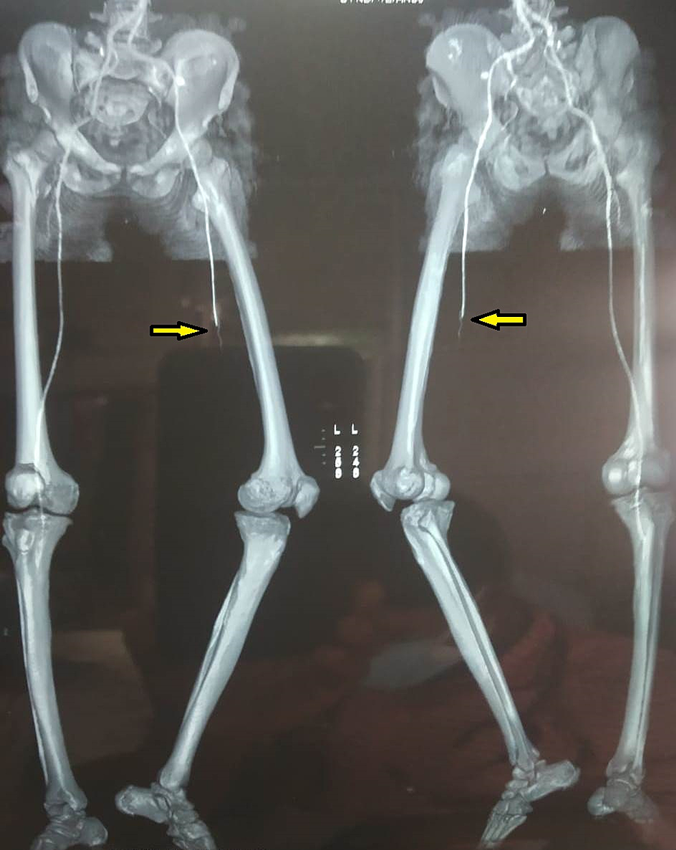 3D-Virtual-reconstructed-CTA-image-showing-complete-blockage-of-the-mid-superficial-femoral-artery,-popliteal-artery,-and-infra-popliteal-artery-with-poor-collateral-status-(Arrow).-There-is-no-distal-reformation-of-the-vessels