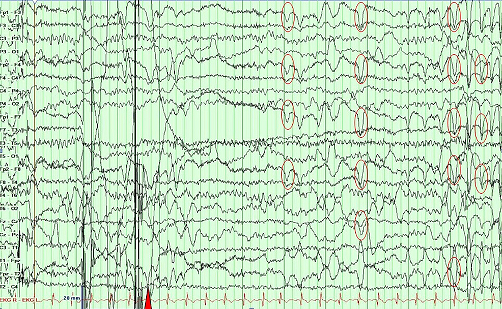 An-epoch-showing-an-EEG-returning-to-baseline-(red-triangle),-and-the-patient-is-awake,-seen-as-eye-blinks-(red-circles)