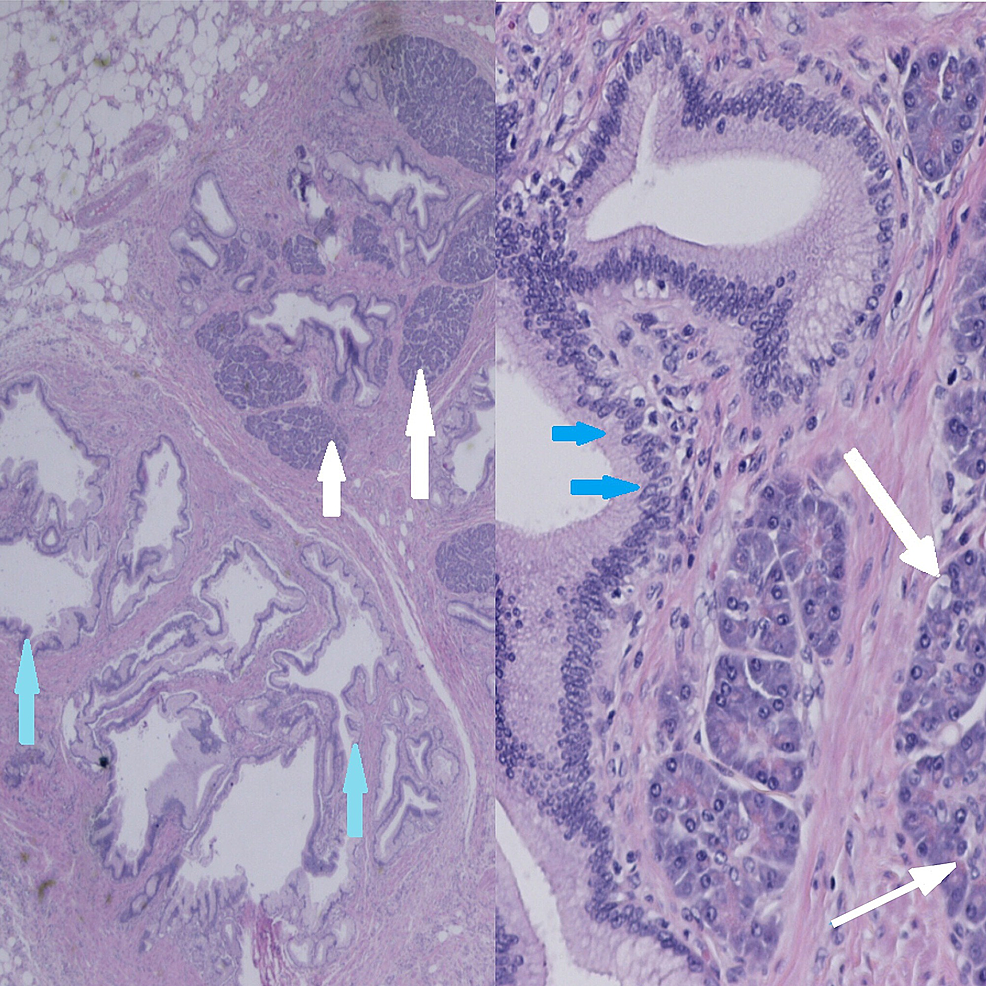 Histology-of-the-specimen-clearly-indicating-the-presence-of-pancreatic-and-gastric-tissue