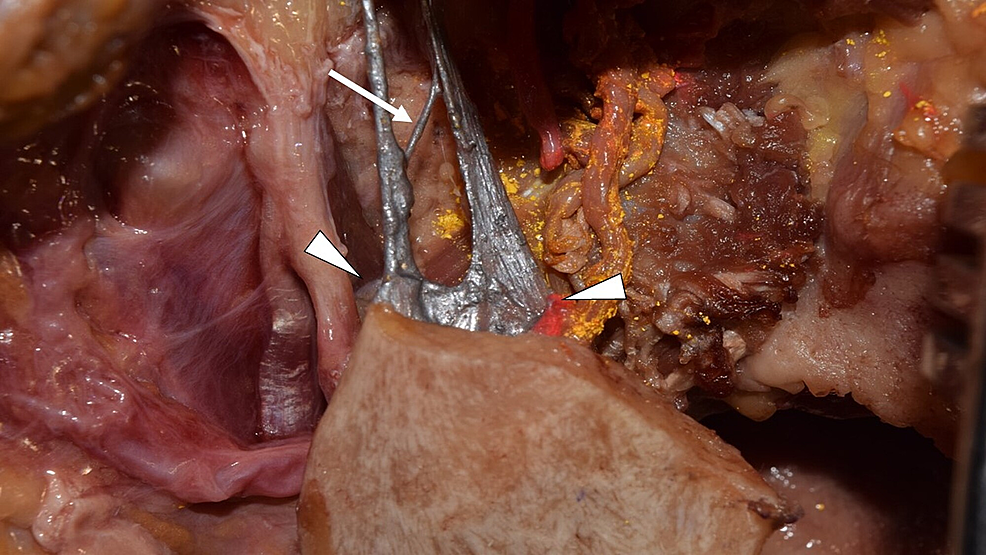 Lateral-view-of-the-attachment-of-the-SML