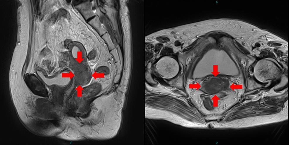 MRI-of-Case-1.