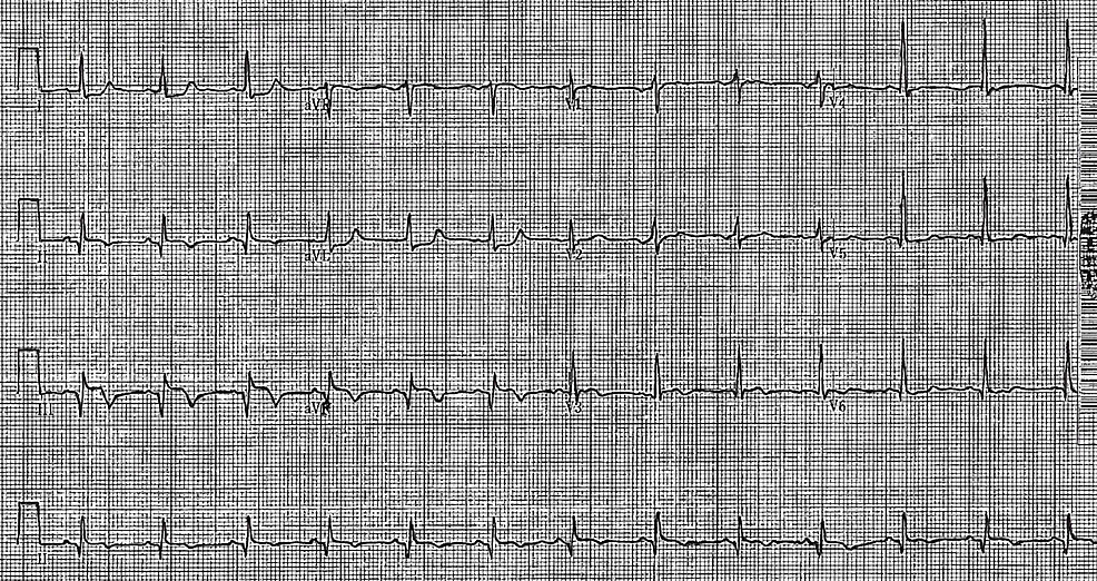 12-lead-electrocardiogram-demonstrating-ST-elevations-in-leads-II,-III-and-aVF-with-associated-Q-waves-and-reciprocal-ST-depressions-in-leads-I-and-aVL.