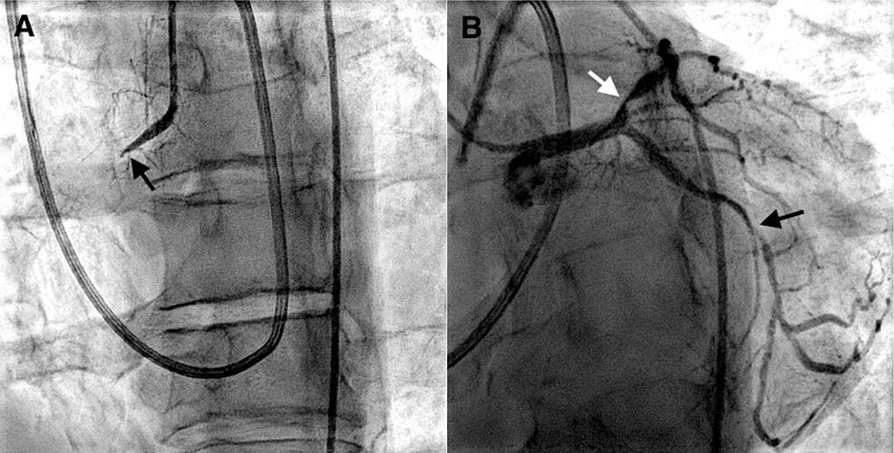 Coronary-angiography.