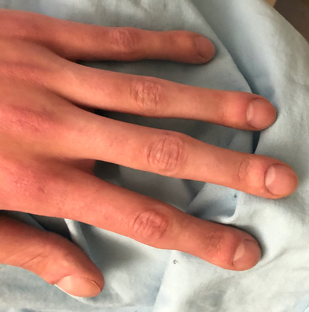 Swollen-DIP-and-PIP-joints-from-above-(stage-3-clubbing)