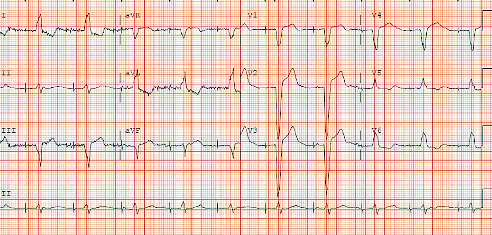 Electrocardiogram-performed-on-presentation-to-the-emergency-room-with-chest-pain-showing-intermittent-beat-capture