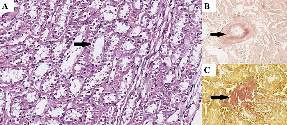 Renal-Histopathology-in-the-HFD-Group