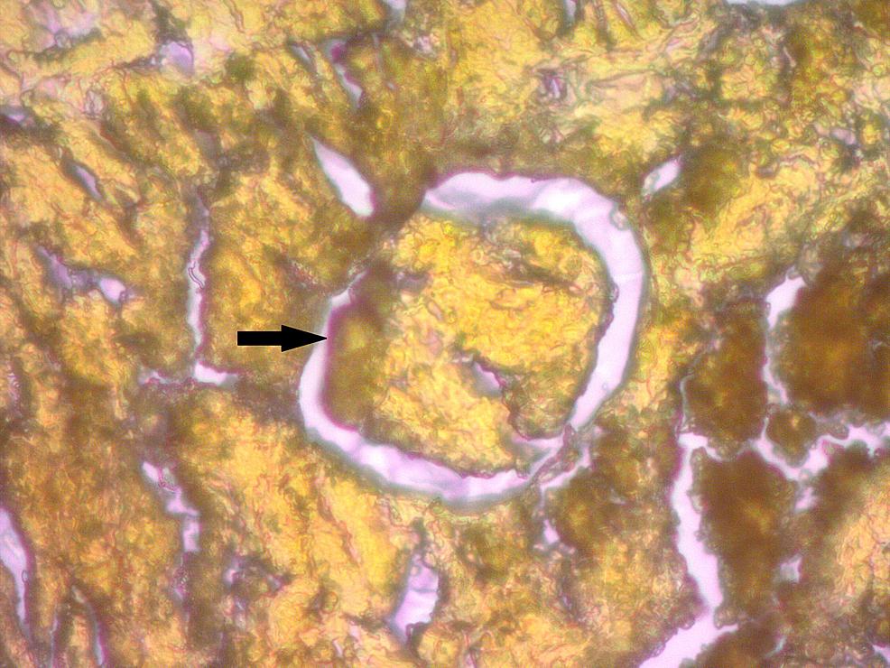 LISA-Stain-Showing-Amyloid-Deposits-in-Glomerulus-(arrow)