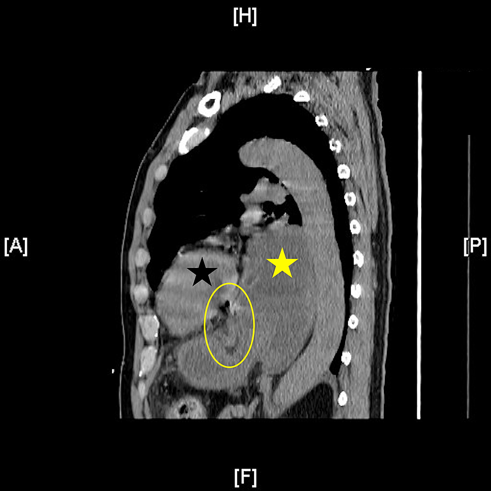 Type-III-hiatal-hernia-sagittal-view-showing-gastric-wall-edema,-gastric-pneumatosis,-and-punctate-pneumoperitoneum