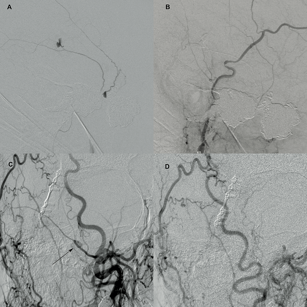 Cerebral-angiography-showing-the-traumatic-pseudo-aneurysm-pre--and-post-treatment