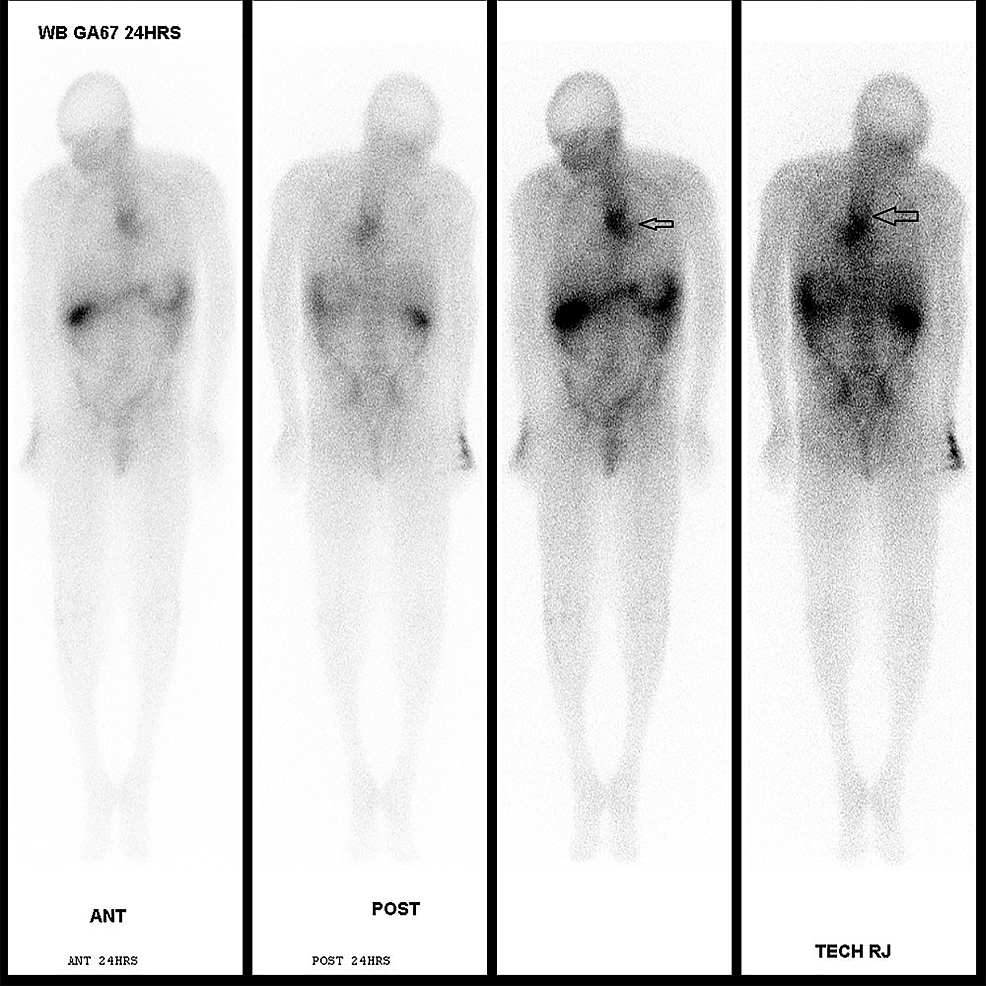 Gallium-scan-for-whole-body-showed-moderate-to-marked-abnormal-radioactivity-at-the-mid-esophagus,-extending-inferolaterally-to-the-left-with-esophageal-malignancy-with-focal-extra-esophageal-invasion-or-esophageal-abscesses-with-or-without-underlying-malignancy.