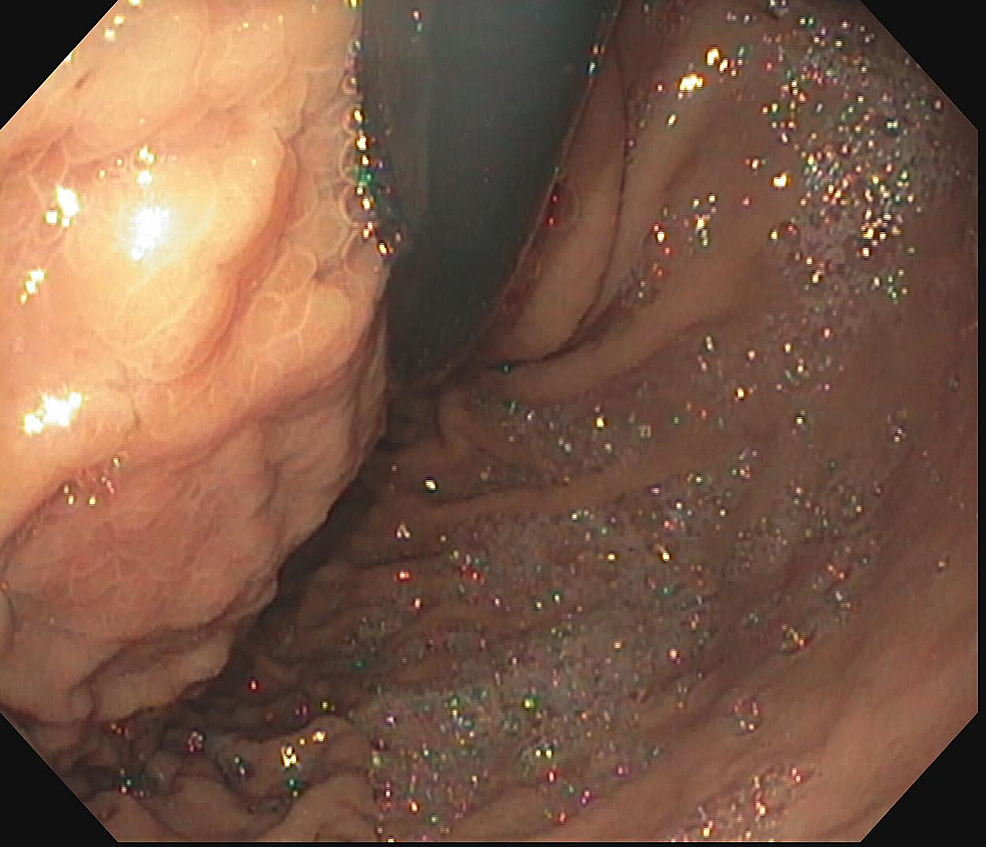 Esophagogastroduodenoscopy-showing-noticeable-bulge-from-the-gastric-wall-in-the-proximal-stomach-that-corresponded-to-one-of-the-pseudocysts-on-computed-tomography-scan.