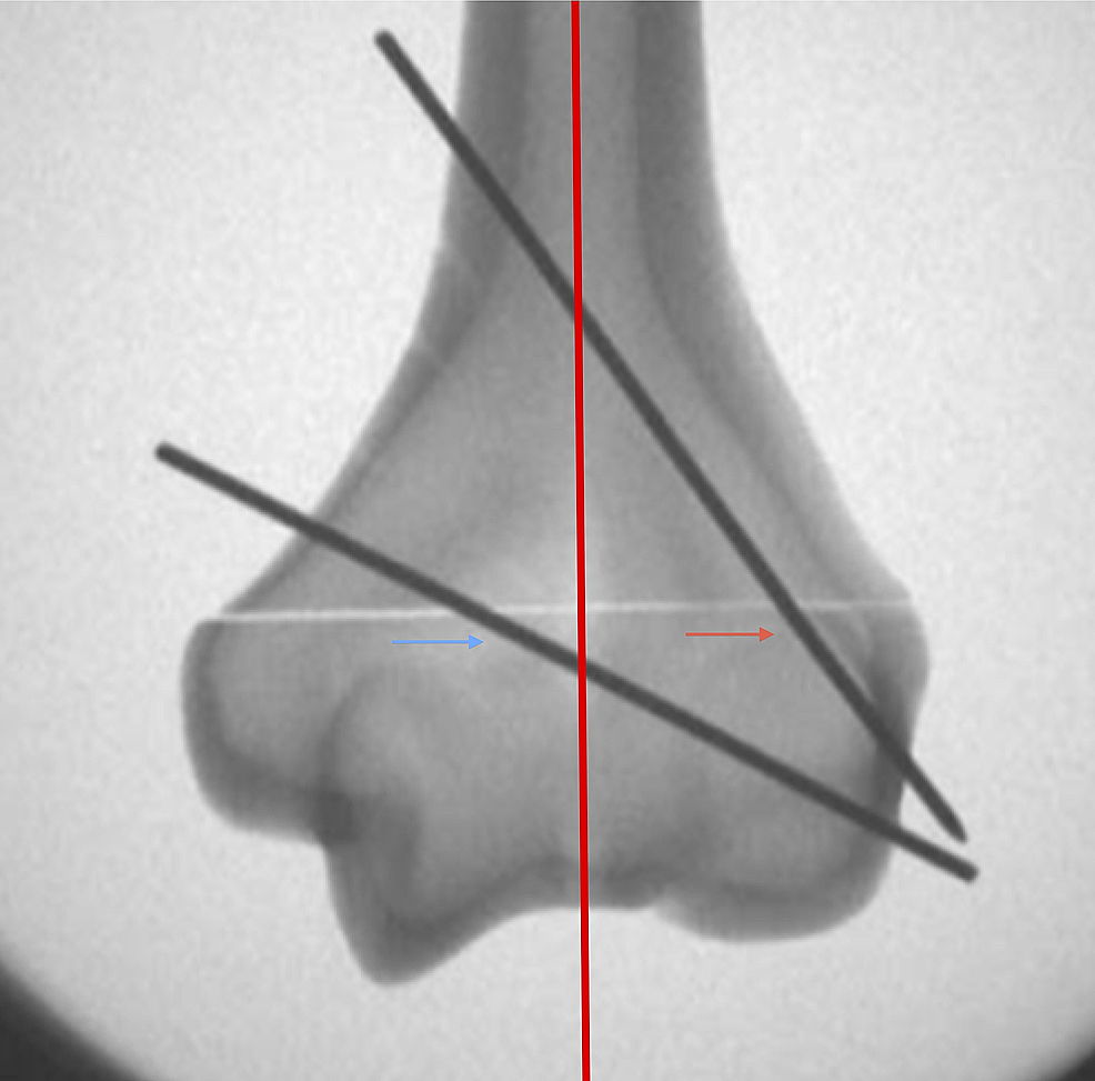 Assessment-of-AP-intraoperative-radiograph-for-bi-columnar-fixation.-Distal-humerus-divided-into-medial-and-lateral-columns-(as-indicated-by-the-red-line).-Bi-columnar-fixation-achieved-if-(1)-a-wire-is-traversing-the-lateral-half-of-the-distal-fragment-(red-arrow);-(2)-a-wire-is-traversing-the-medial-half-of-the-distal-fragment-(blue-arrow);-and-(3)-both-wires-have-purchase-in-the-medial-and-lateral-cortices.