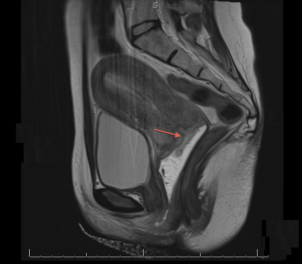 Magnetic-resonance-image-(MRI)-of-the-cervical-mass