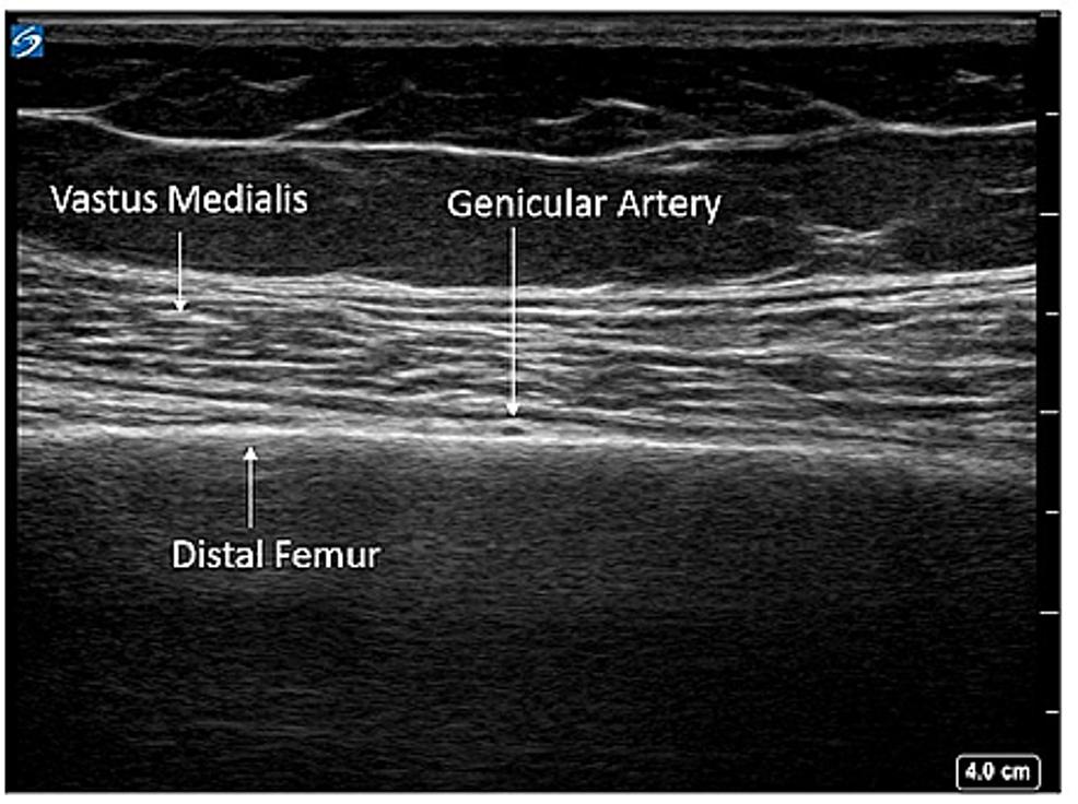 Superomedial-genicular-block-anatomy