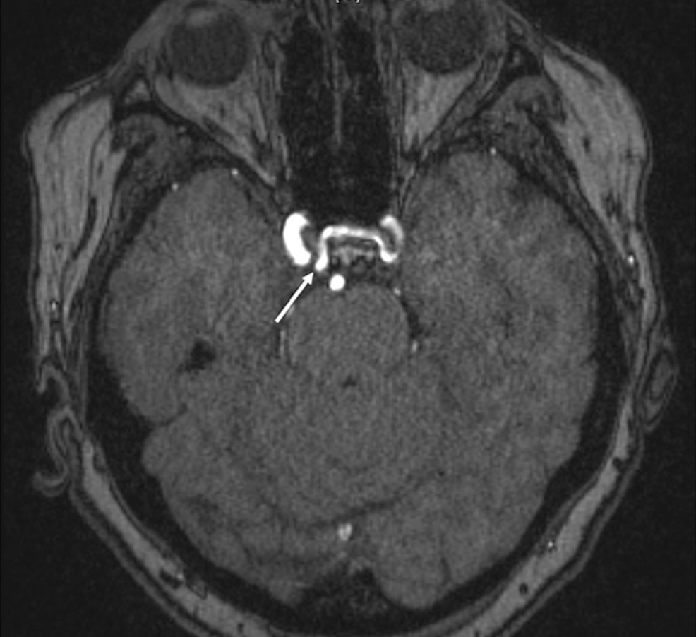 Axial-3D-time-of-flight-MRI-of-the-head,-noting-the-unusual-origin-of-the-left-internal-carotid-artery-(arrow)-from-the-contralateral-cavernous-segment-of-the-right-internal-carotid-artery.-Note-the-course-of-the-left-internal-carotid-artery-through-the-floor-of-the-sella-turcica.