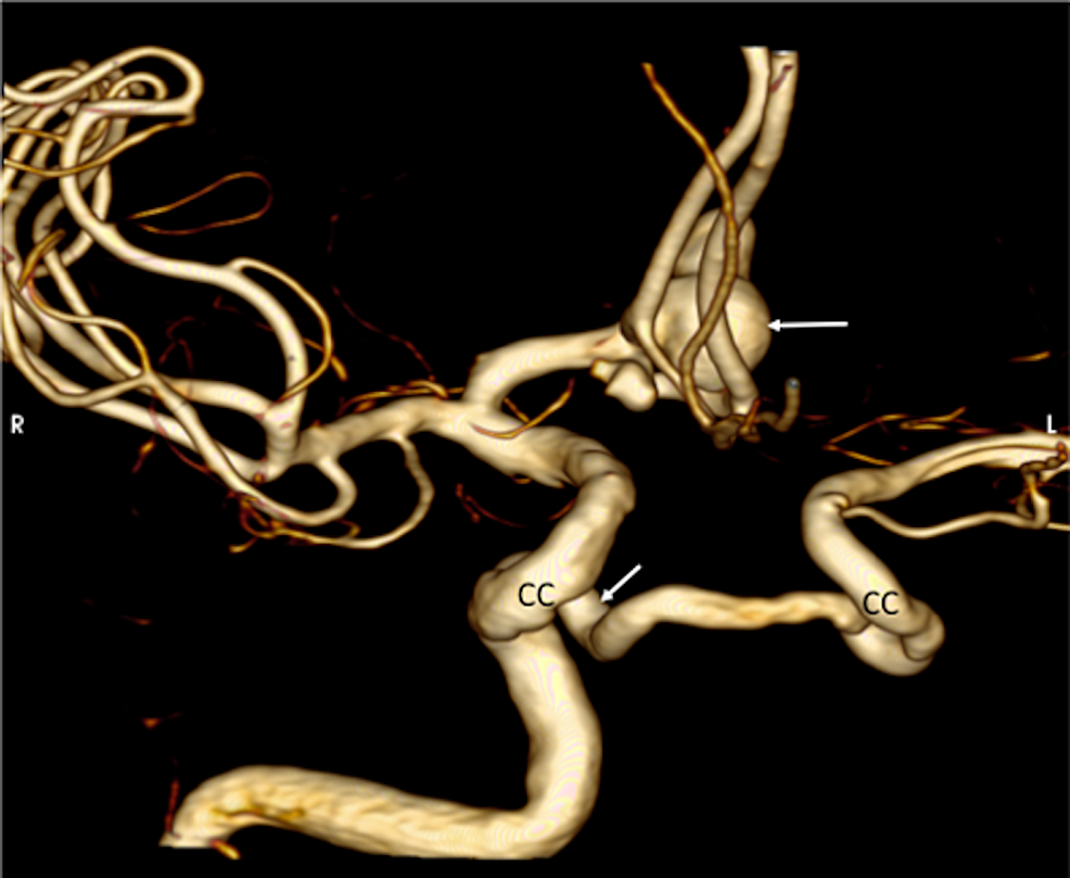 3D-reconstruction-from-a-CT-angiography,-noting-the-anterior-circulation-aneurysm-(upper-arrow)-and-the-origin-of-the-left-internal-carotid-artery-from-the-right-cavernous-segment-(CC)-of-the-right-internal-carotid-artery-(lower-arrow).