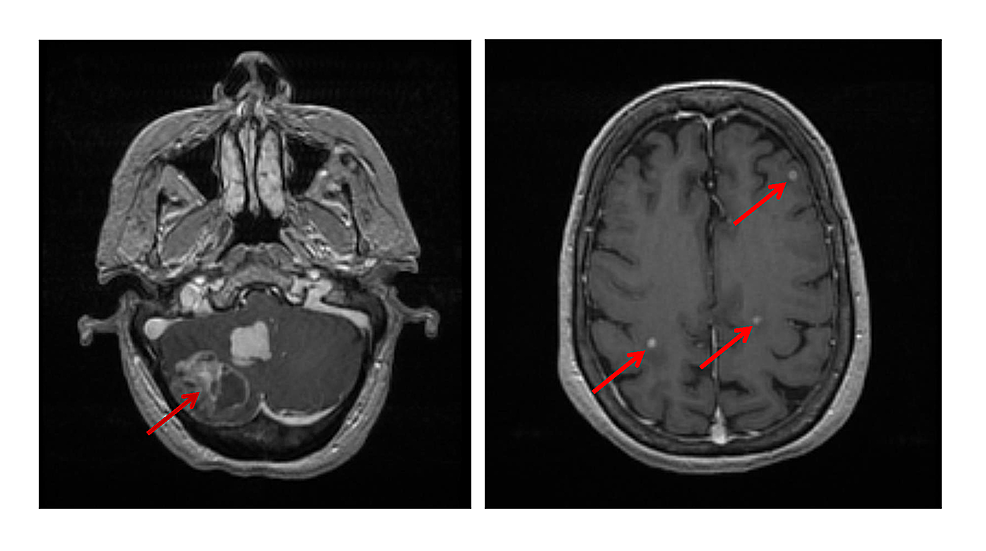 MRI-scans-of-the-brain-of-the-patient-at-initial-presentation