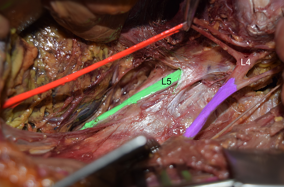 Cadaveric-dissection-of-the-left-lumbar-plexus.-Note-the-absence-of-L4-ventral-ramus-(L4)-fusing-with-the-L5-ventral-ramus-(L5-and-colored-green)-i.e.,-absent-lumbosacral-trunk.-For-reference,-note-the-obturator-(orange)-and-femoral-nerves-(purple).