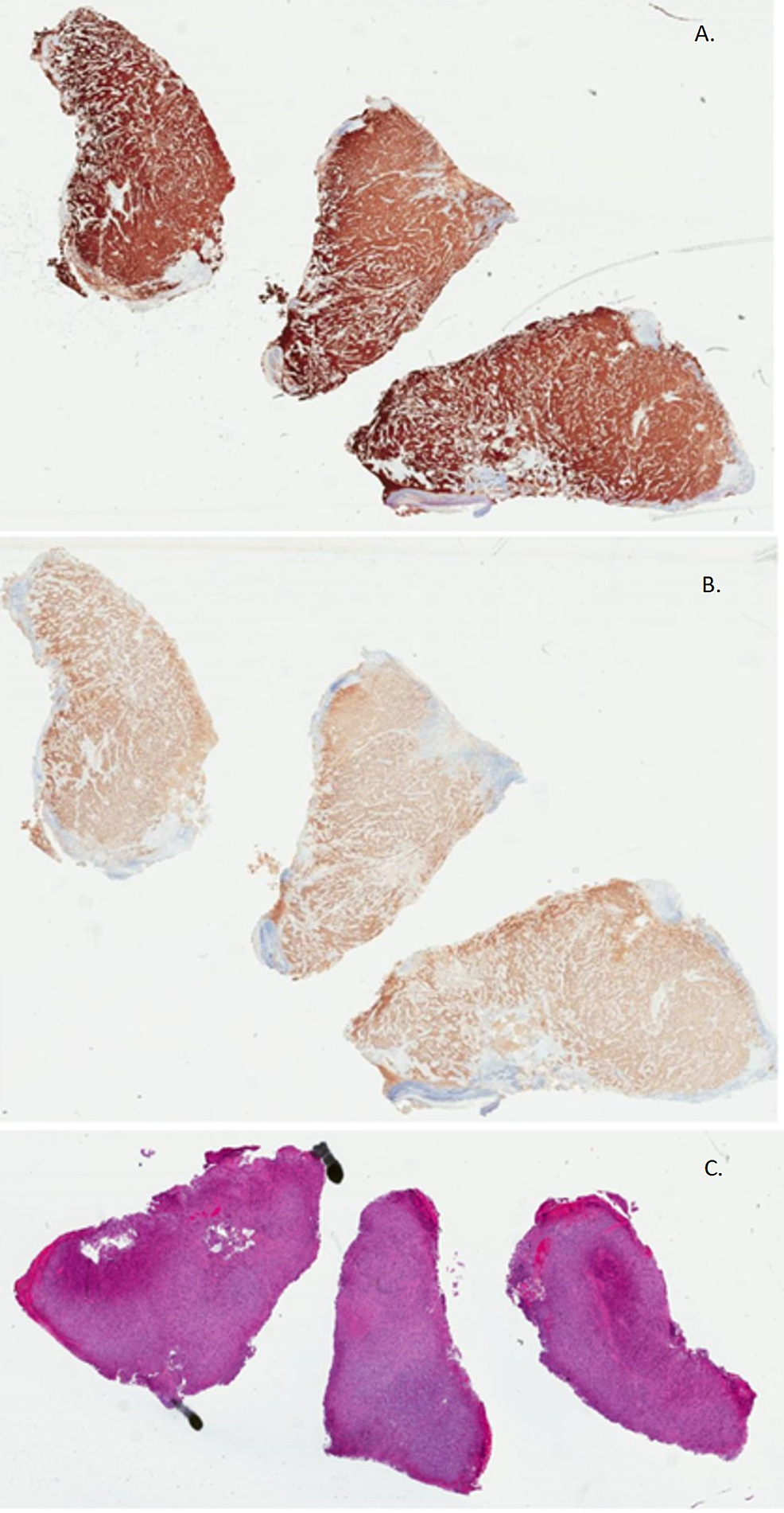 Biopsy-of-the-mass-confirming-nodular-melanoma-with-a-Breslow-thickness-of-10.1-mm,-Clark-level-IV,-stage-pT4b,-mitotic-rate-of-3-mitoses/mm².