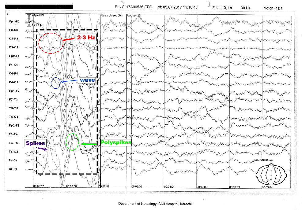 Electroencephalography-tracing-of-a-nine-year-old,-awake-patient