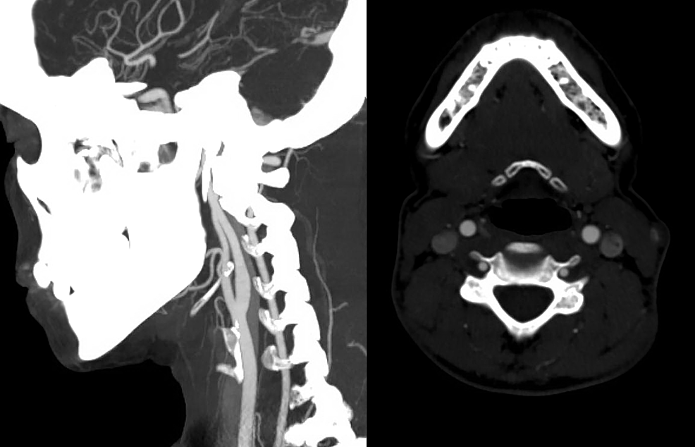 Cureus Vertebral Artery Dissection And Cord Infarction An