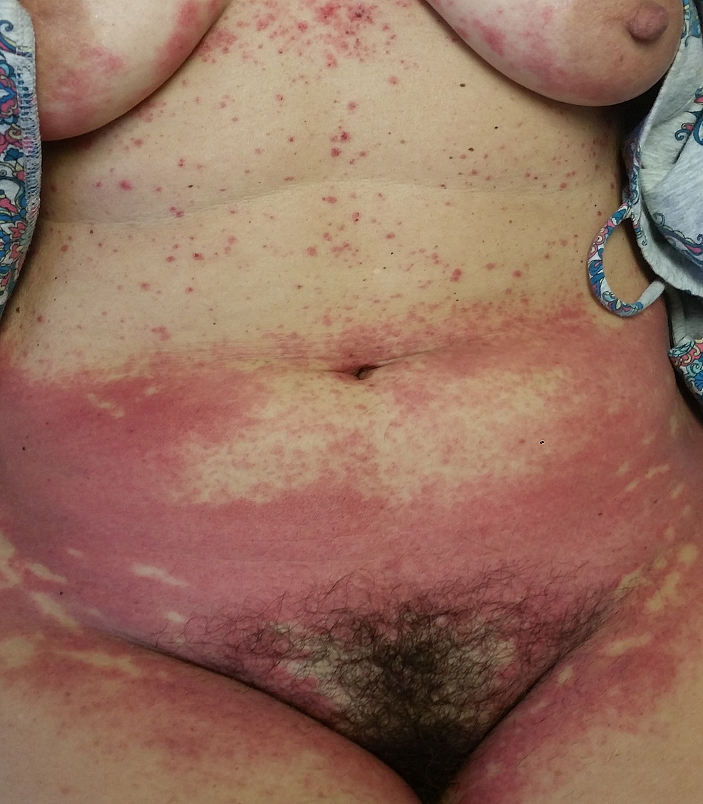 Symmetric,-erythematous-papules-and-plaques-over-the-lower-abdomen-and-inner-thighs