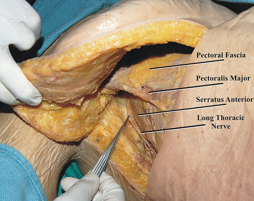The-long-thoracic-nerve-is-seen-following-skin-retraction-and-superficial-dissection-of-the-lateral-chest-wall