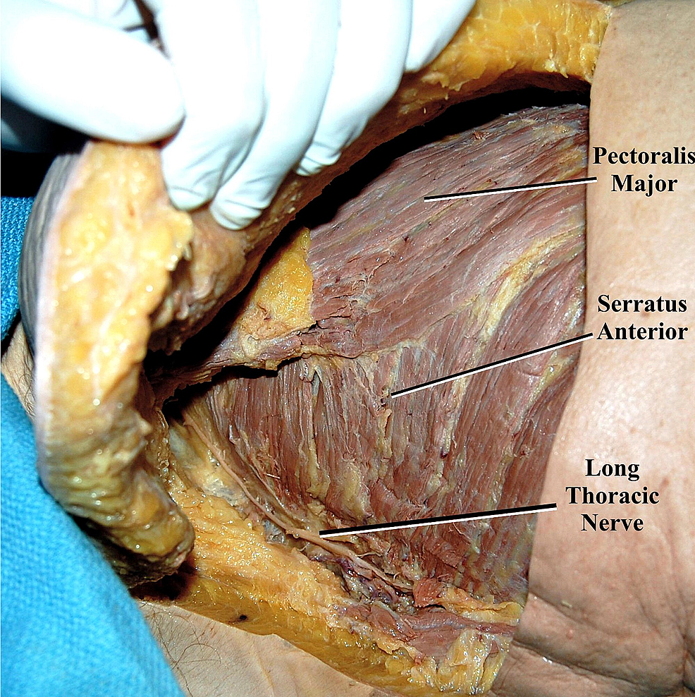 Additional-dissection-highlights-the-underlying-serratus-anterior-muscle