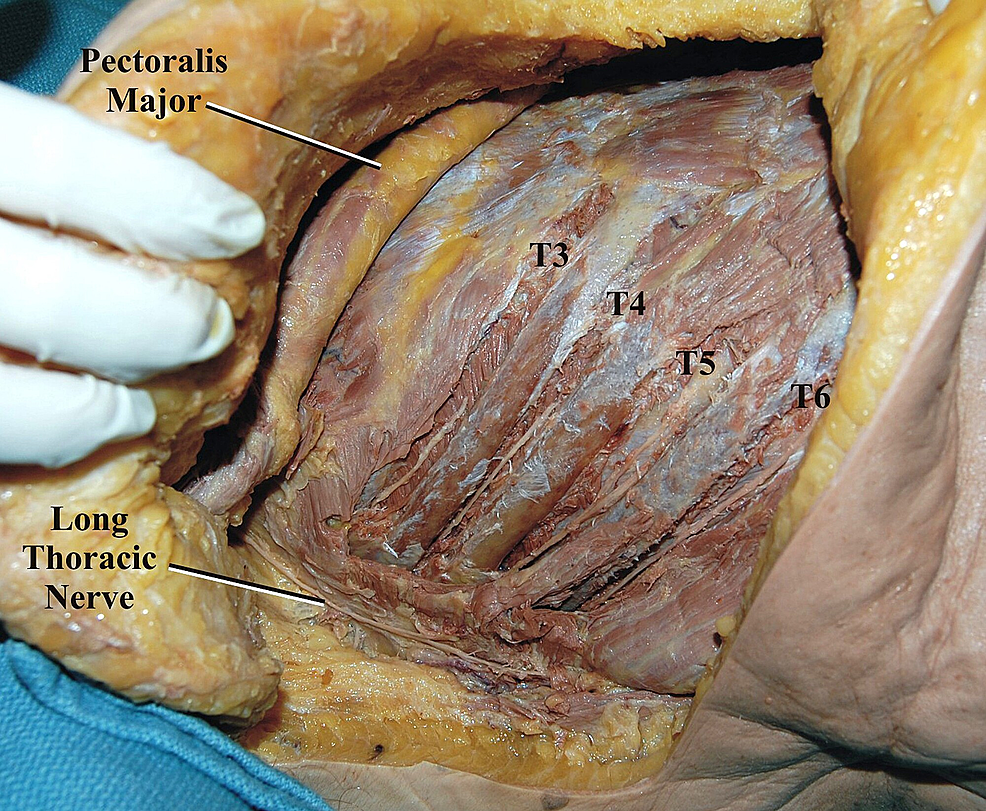 The-adjacent-intercostal-nerves-(T3-T6)-are-dissected-in-the-intercostal-spaces