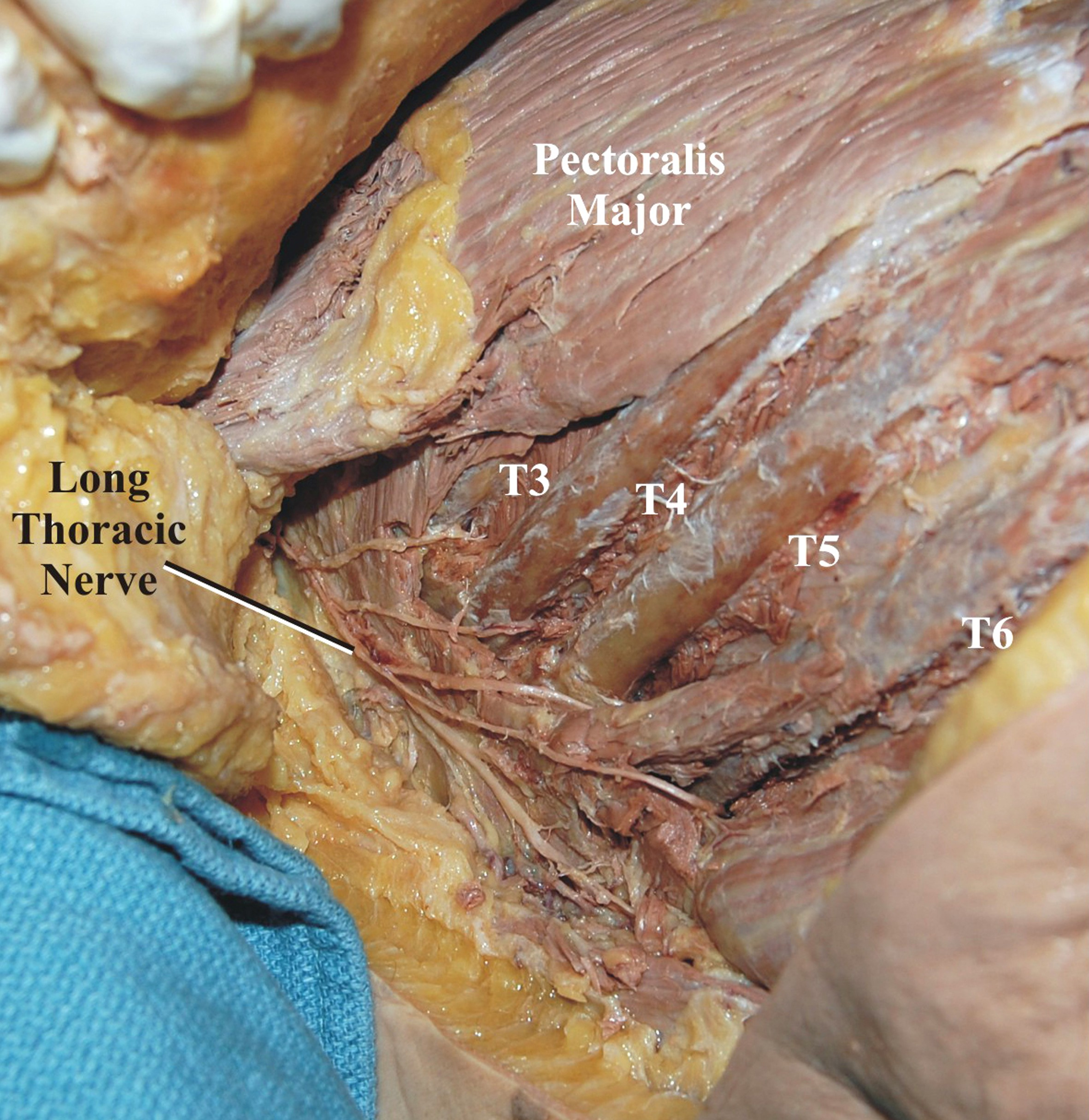 Cureus Intercostal Nerve To Long Thoracic Nerve Transfer For The