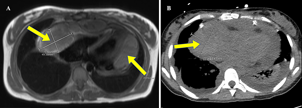 The-cardiac-magnetic-resonance-imaging-(A)-and-the-computed-tomography-(B)-of-the-chest-illustrating-right-atrial-mass-extending-into-the-pericardial-sac-and-a-multiloculated-fluid-collection-lateral-to-the-left-heart-border.