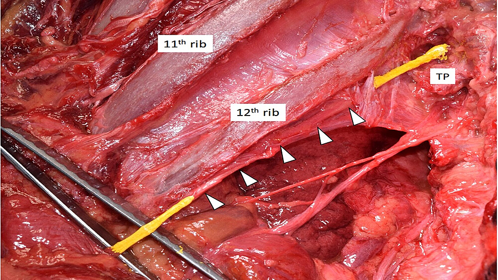 Cadaveric-dissection-of-the-left-posterior-thoracolumbar-region-at-the-T12/L1-level